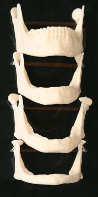 A photograph showing the progression of bone resorption in the jaw which can be prevented with implant overdentures.