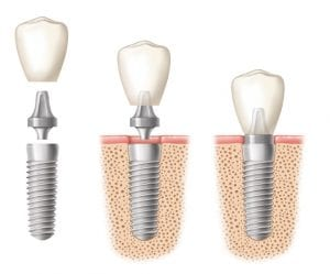 Diagram depicting the main parts of dental implants and how they fit into the bone tissue beneath the gums.
