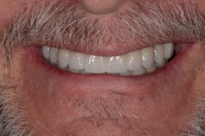 A patient after getting implant overdentures designed by Dr. Tostado.