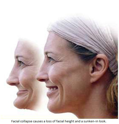 A photo of an older woman depicting the difference between facial collapse and a smile supported by dental implants.