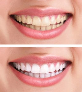 A picture demonstrating the drastic difference that teeth whitening can make.