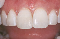 A photo showing the results of dental bonding.