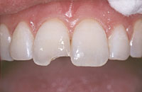A photo showing a chipped upper front tooth prior to dental bonding.