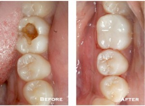 Before and after image showing a decayed molar and then how it looks after getting a tooth-colored filling by mercury-free dentist Dr. Tostado.