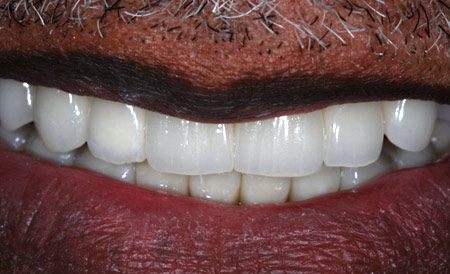 Dr. Brian LeSage Dentist Smile Gallery