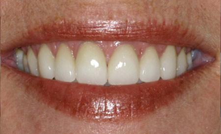 Dr. Brian LeSage Dentist Smile Gallery