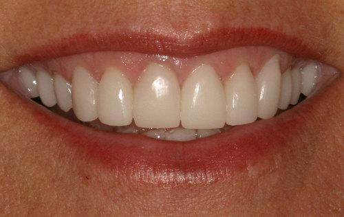 The same teeth after getting full porcelain crowns. They look very natural and subtly translucent with no dark lines near the gums.