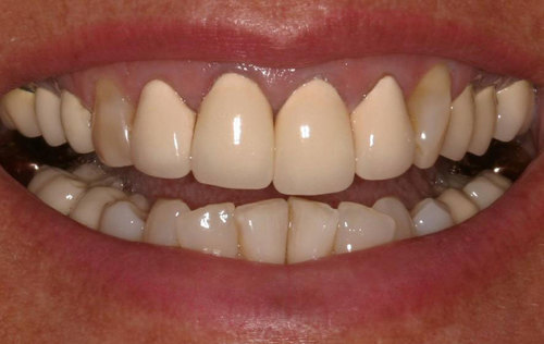A set of porcelain-covered metal crowns on front teeth. They have a chalky and opaque look and make the gums look dark.