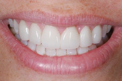 The teeth of one of Dr. Tostado's patients after receiving porcelain veneers. They now look even and bright.