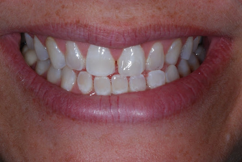 The teeth of one of Dr. Tostado's patients before receiving porcelain veneers. They look a little too small, have gaps between them, and have uneven discoloration.