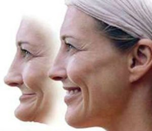 Woman suffering from facial collapse, before and after pictures